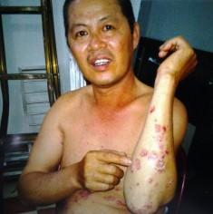 Bệnh Vảy nến sử dụng thuốc của Bắc Việt sau 5 tháng